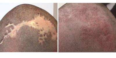 Micropigmentacion capilar de cicatrices