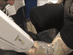 Curso eliminación de tatuaje